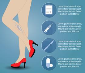 varicose_infographic