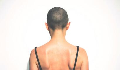Hairless woman