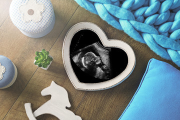 Photo frame with ultrasound scan of baby and little details of home interior on brown wooden background, top view