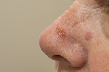 Close up of a nose that has been treated with cryosurgery for sun spots