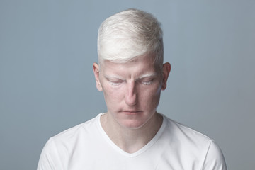 Albino man with closed eyes against gray background