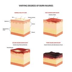 Skin burn classification.