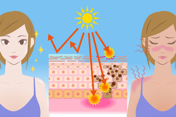 UV care before after image, young girl puts on the sunscreen or not, mechanism of the sunburn, vector illustration