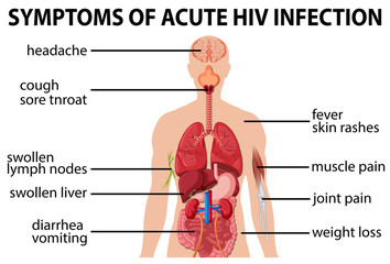 Chart of symtoms of acute HIV infection