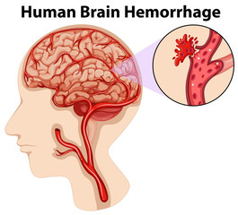 Diagram of human brain hemorrhage