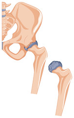Close up picture of hip bones