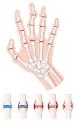Rheumatoid arthritis diagram on white
