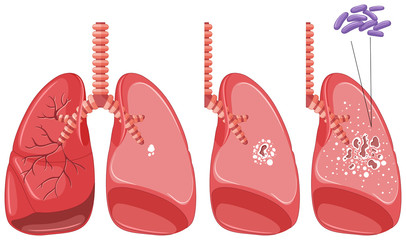 Tuberculosis in human lungs