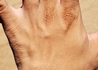 hand human skin texture