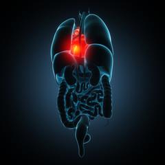 heart human disease illustration