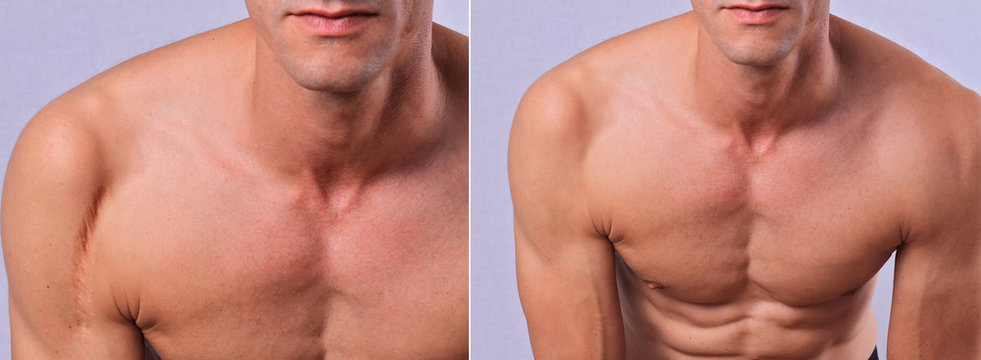 Laser scar removal before and after. Attractive Man with scar on his shoulder