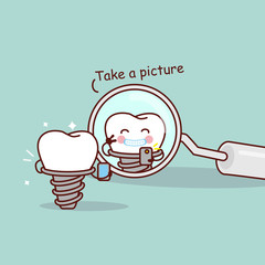 cartoon implant tooth take picture