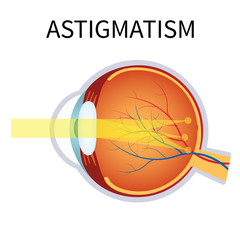 Astigmatism. Eyesight problem, blurred vision.