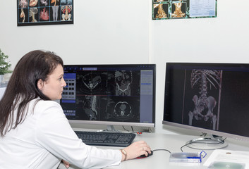 Brunette female doctor examining an CT scanner results