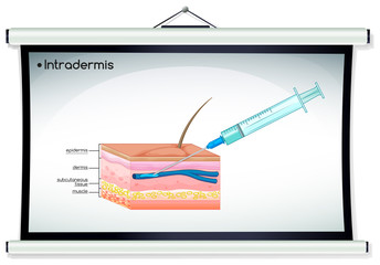 Diagram showing intradermis injection