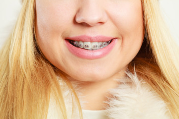 face with dental braces