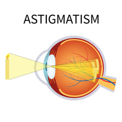 Illustration of astigmatism.