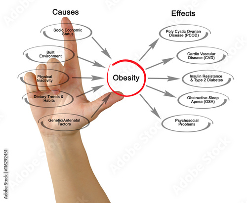 causes and effects essay of obesity How fat and obesity cause diabetes essay - diabetes: causes and effects have you ever been feeling tired and listless lately.