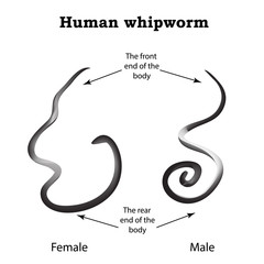 Whipworm. Structure whipworm females. The structure of the male whipworm. Infographics. Vector illustration on isolated background