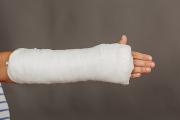 Close-up of a broken arm in a cast on  grey background.  Medicin