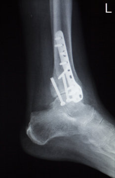 Ankle foot orthopedics implant xray