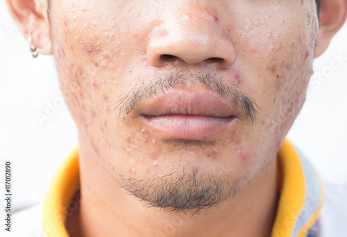 Hookup a guy with acne scars