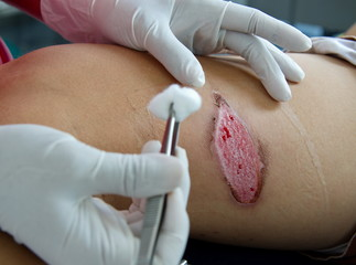 Dressing burn wound from exhaust motorcycle.