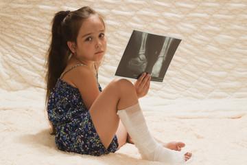 Грустная девочка с загипсованной ногой и рентгеновским снимком