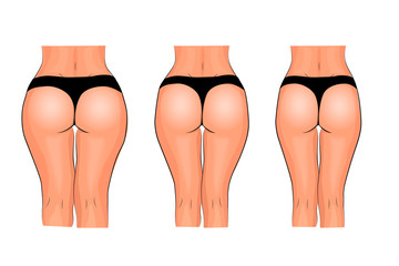 buttocks of women. weight loss. fitness. comparison