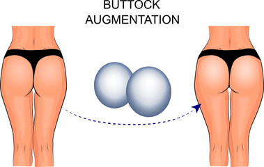 female buttocks implants, buttock augmentation