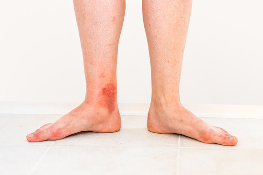 Red rash on leg of patient who was bitten by an insect