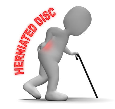 Herniated Disc Indicates Vertebral Column And Backache 3d Render
