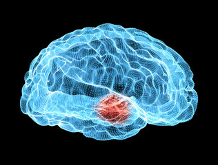 Cervello, malattie degenerative, Parkinson
