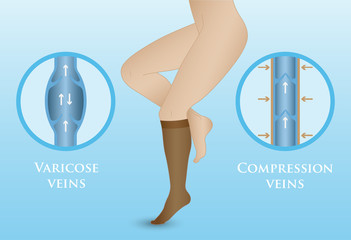 Medical compression hosiery
