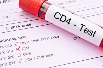 CD4 cell testing.