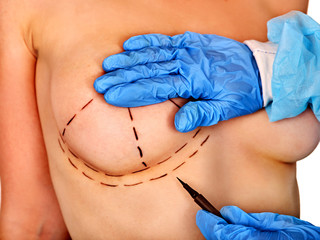 Breast cancer surgery. Doctor makes dotted line on female body. Breast body part.