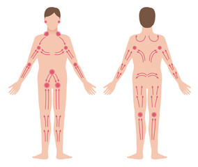 man's lymphatic massage diagram, front and back view, treatment of the swelling, vector illustration