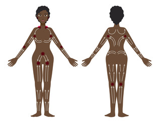 black woman's lymphatic massage diagram, Treatment of the swelling, vector illustration