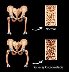 Illustration of the Rickets-osteomalacia