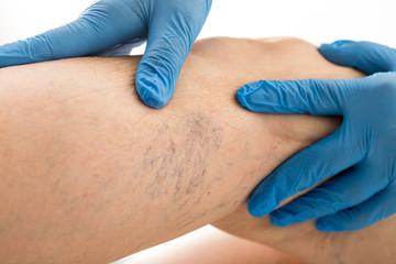 Pajączki naczyniowe. Teleangiektazje. Choroby skóry.