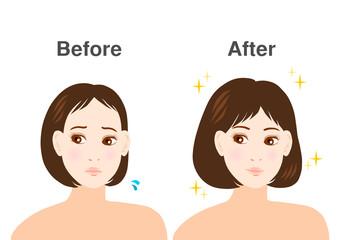 女性 悩み 薄毛 イラスト before after