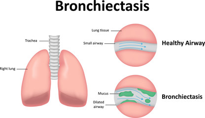 Bronchiectasis Labeled