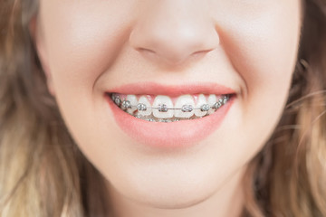 Smiling Woman with Teeth braces