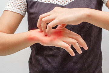 Women scratch the itch with hand ,arm, itching, Concept with Healthcare And Medicine.