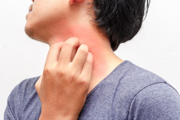 men scratch the itch with hand ,neck, itching, Concept with Healthcare And Medicine.