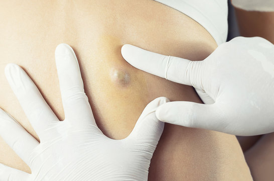 Doctor Diagnosis of the Sebaceous on Woman's Back
