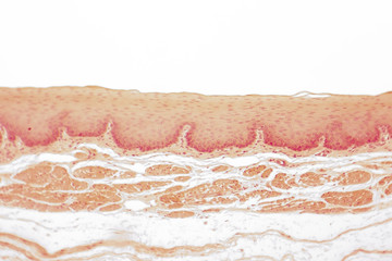 Human esophagous mucosa, non-keratinized stratified squamous epithelium, light micrograph, magnification 40x