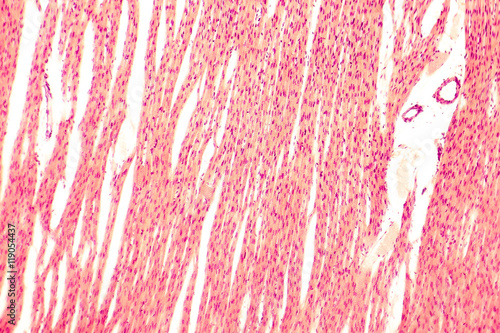 Heart muscle, light micrograph. Striated cardiac muscle cells ...