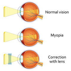 Myopia and myopia corrected by a minus lens.