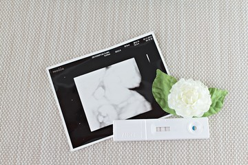New born baby at ultrasound scan of baby, positive pregnancy test and white jasmine flower on tablecloth background